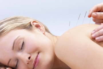 acupuncture-blonde-1-750x400