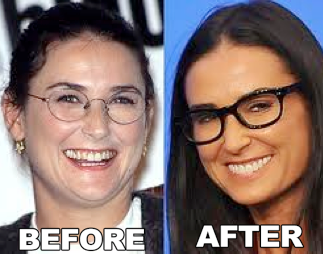 Celebrity-Demi-Moore-Plastic-Surgery-Before-After