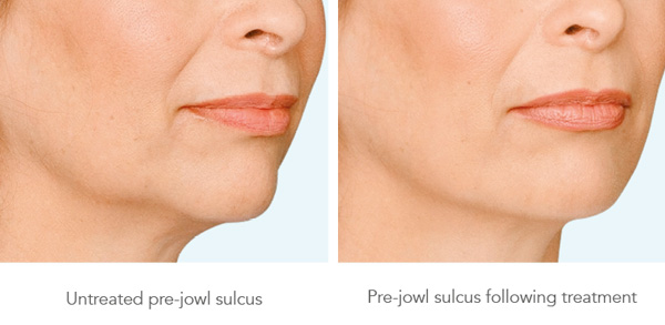 before_after_pre-jowl-lift-treatment
