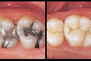 aacd_photo_of_tooth_colored_fillings
